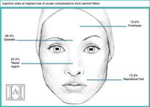 Diagram-fillers blindness