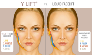 Y-LIFT-vs-Liquid-Facelift-Filler-Placement-1